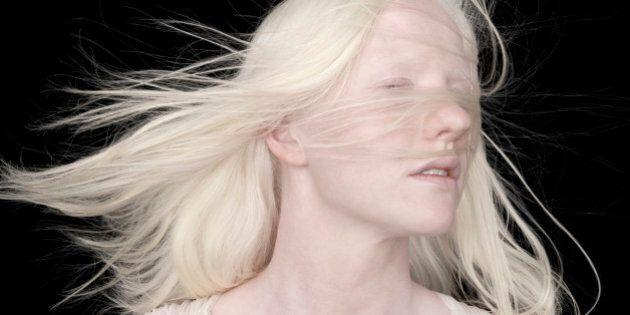 Albino woman
