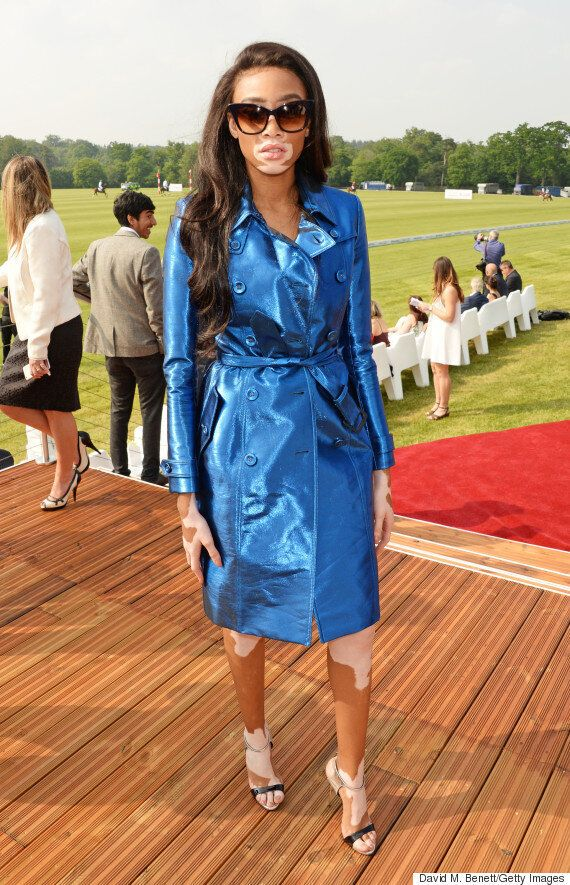 Prince Harry Totally Ruined Winnie Harlow's Serious