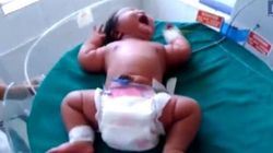 Baby Girl Born Weighing The Same As A Six-Month