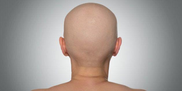 bald head  rear view. file...