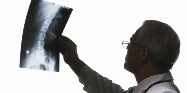 Mature man looking at X-ray image