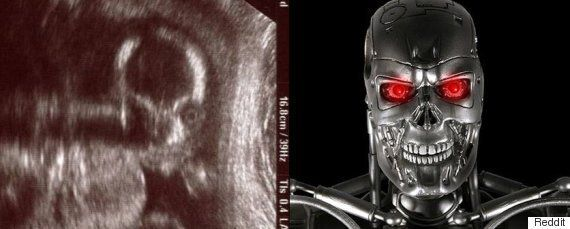 Baby Ultrasound: This Photo Is Freaking Out The