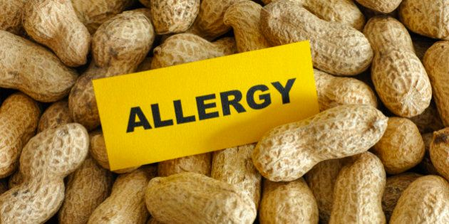 Peanut allergy. Conceptual