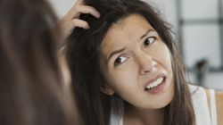 The Real Cause Of Dandruff Is Not What You