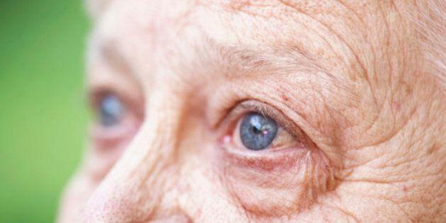 Canada Needs a National Dementia