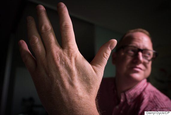 Nikolas Badminton, Vancouver 'Biohacker,' Lives With Microchip In His Hand For Superhuman