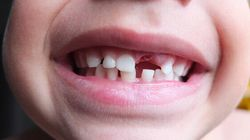 Thousands Of Low-Income Kids To Lose Dental Care: Ontario