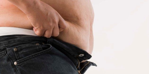 Side view of obese
