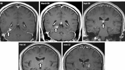 You Won't Believe Which Creature Was In This Man's Brain For 4