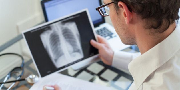 doctor checking at x-ray of lungs and writing diagnosis, clinic