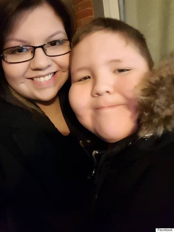 Winnipeg Woman Undergoes Triple Amputation Following Strep