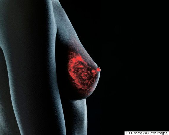 Breast Cancer Signs And Other Important Things You Should