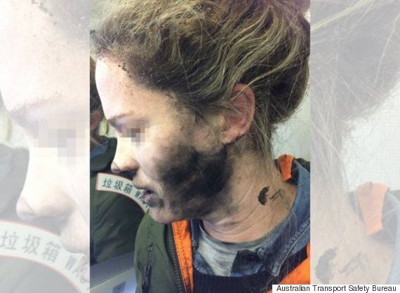 Headphones Exploding During Flight Badly Burnt Australian Woman's
