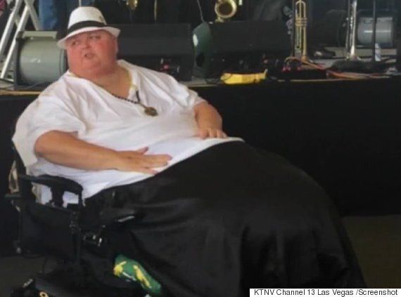 130-Pound Tumour Likely Caused By Ingrown Hair Removed From Mississippi Man's