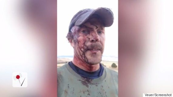 Todd Orr Posts Gory Video After Being Attacked By Same Grizzly Bear