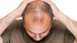 When And How Fast You Go Bald Could Be A Sign Of Prostate