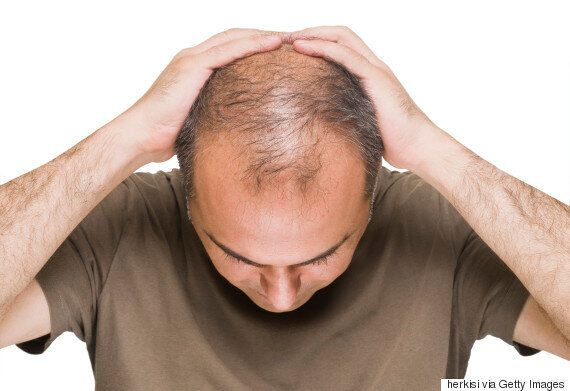 Baldness And Prostate Cancer: Scientists Say The Two Are
