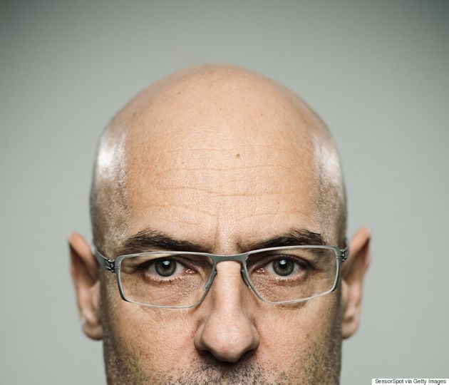 Short, White Men More Likely To Go Bald:
