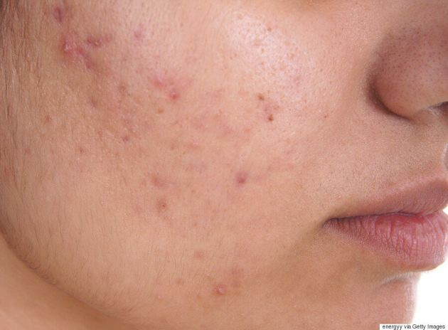 Study Shows That Acne-Sufferers Look Younger For