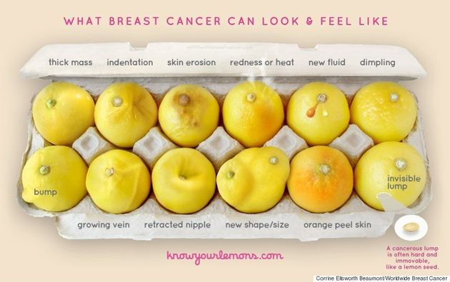 This Photo Of Lemons Can Help Women Spot Signs Of Breast