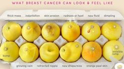 This Photo Of Lemons Can Help Women Detect Breast