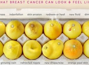 Breast Cancer Signs Huffpost Canada