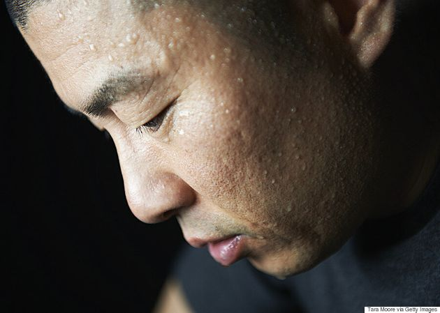 Excessive Sweating Linked To Mental