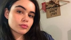 Model Barbie Ferreira Reminds Us Stretch Marks Are