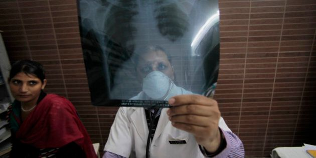 An Indian doctor examines a X-ray picture of a tuberculosis patient in a district TB center on World...