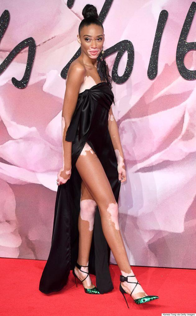 Winnie Harlow Stuns In Baja East Slit Gown At The 2016 British Fashion
