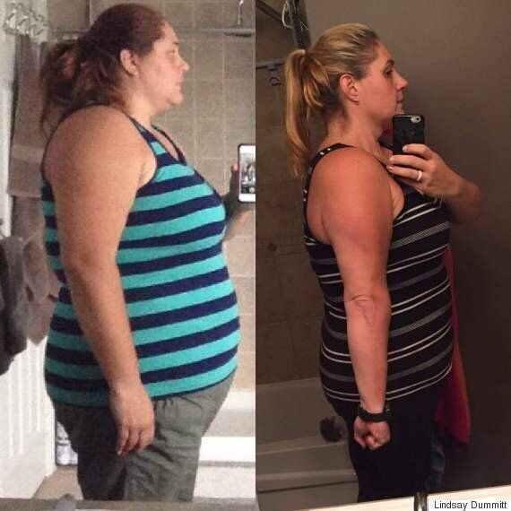 Weight Lost: Ontario Mom Drops 92 Pounds For Herself And Her