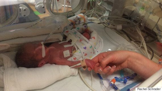 Give Premature Babies A Chance To Experience Life And