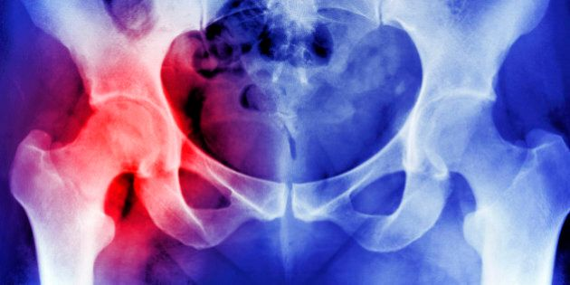 X-RAY SHOWING OSTEOPOROSIS HIP