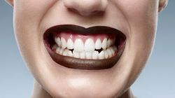 Teens And Teeth Whitening: What You Should