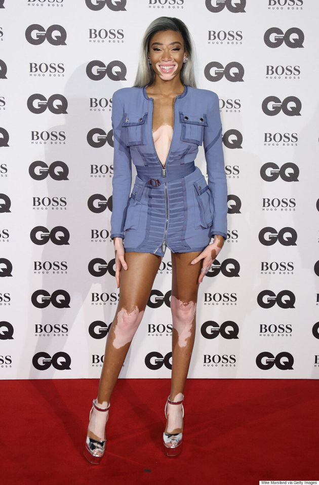 Winnie Harlow Slays The 2016 GQ Men Of The Year Awards With Smoky Grey