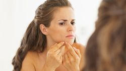 How To Zap Your Zits