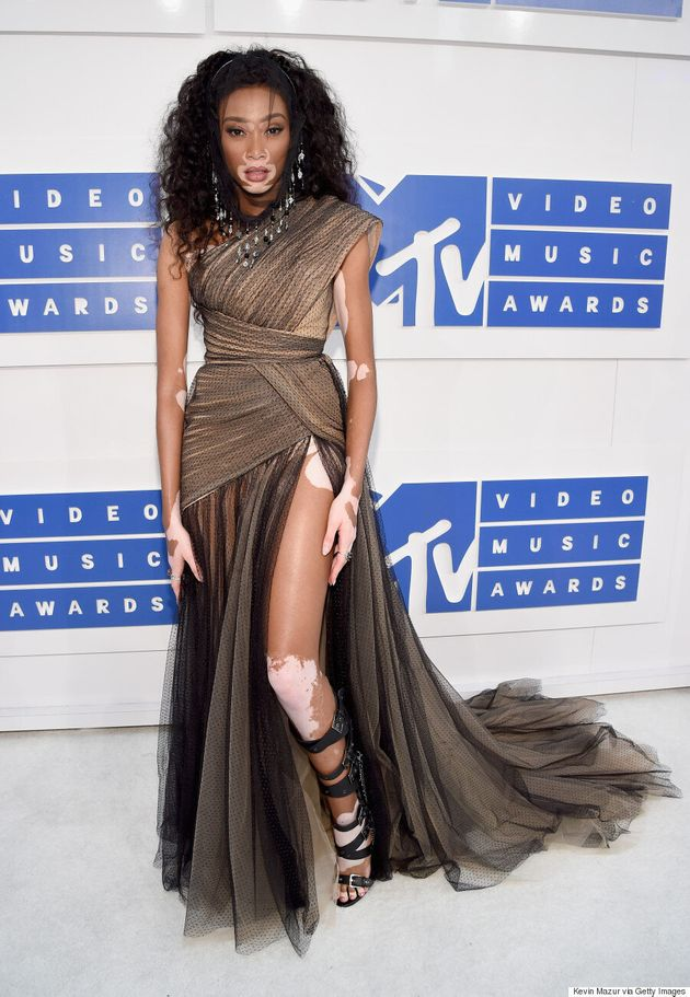 Winnie Harlow Proves She's The Model Of The Moment At The 2016 MTV