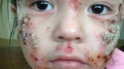 Kids With Mysterious Rash To Be Evacuated From Ontario