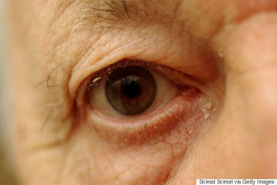 What Is Eye Gunk And Why Do We Get