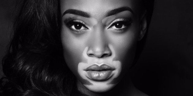 Winnie Harlow Doesn't Want You To Call Her A Role