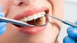 Tooth Fillings May Sometimes Be Unnecessary: