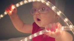 Parents Celebrating Their Children With Albinism Is Truly
