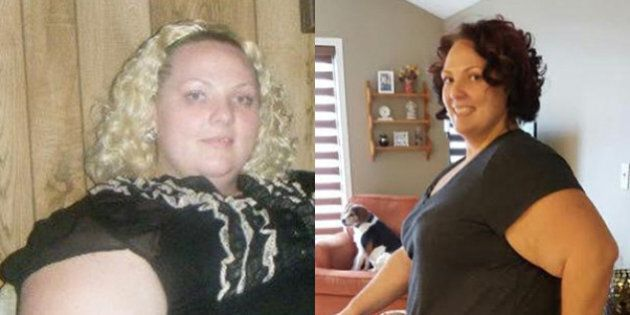 Weight Lost: Woman Drops 110 Pounds After Major Health