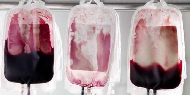 Donor blood in blood bags being separated into its component