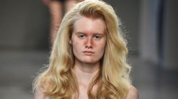 Acne Deemed 'New' Beauty Trend' After Models With Zits Walk