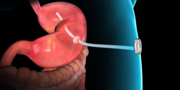 This rendering provided by Aspire Bariatrics, Inc. demonstrates the use of the AspireAssist weight loss device, approved by the Food and Drug Administration on Tuesday, June 14, 2016. The AspireAssist system consists of a thin tube implanted in the stomach, connecting to an outside port on the skin of the belly, which itself is connected to an external device, which helps remove nearly a third of the food stored in the stomach before calories are absorbed into the body, causing weight loss. (Aspire Bariatrics, Inc. via AP) MANDATORY CREDIT