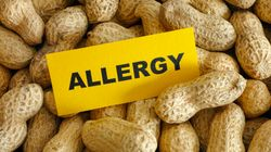 Prebiotics Could Help Prevent Food Allergies In The