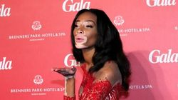 Canadian Model Winnie Harlow On Stardom, Bullying - And