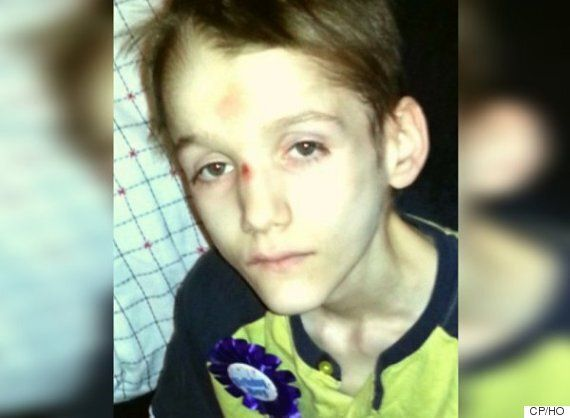 Diabetic Teen Was Starving, Suffering From Scurvy At Time Of Death: