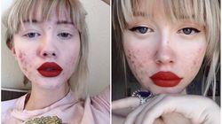 Elle prouve que l'acné ne vous rend pas moins